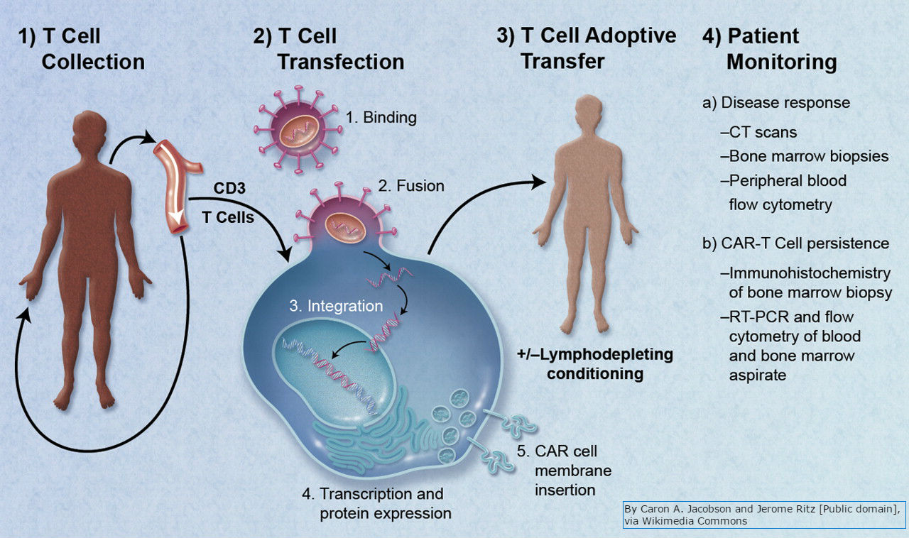 Fighting Cancer with the Immune System: Lessons from CAR T Cell Therapy