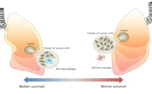 Macrophages_in_Cancer