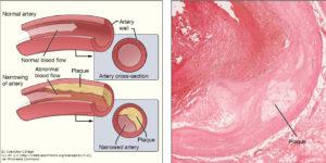 atherosclerotic_plaque