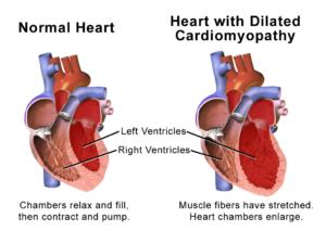 Cardiomyopathy_dilated