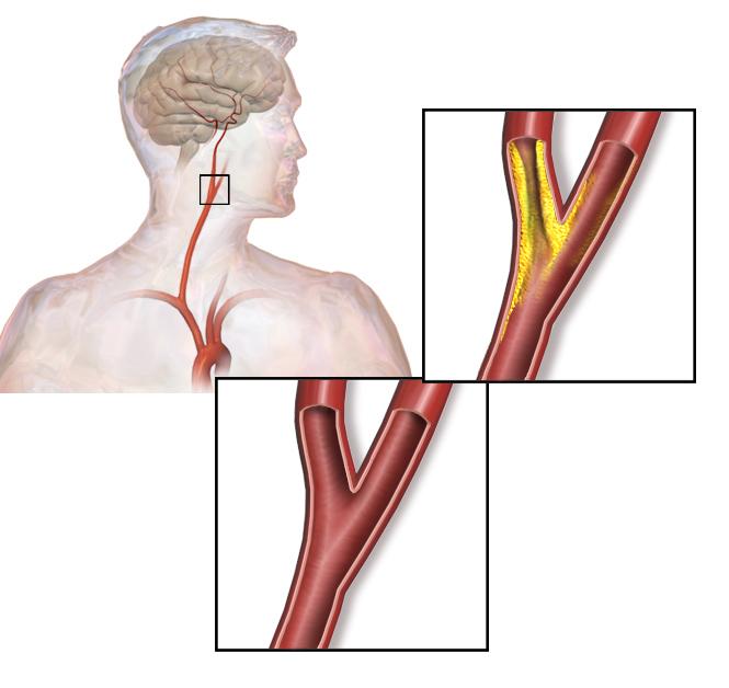 Carotid_artery_stenosis
