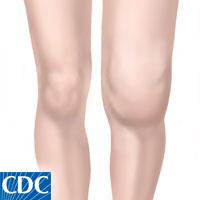 arthritic_knee