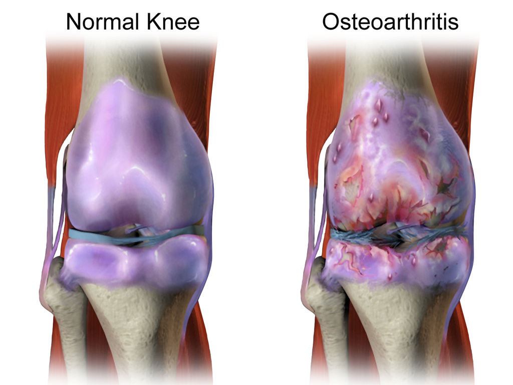 Stem Cells for Arthritic Knees   BioSerendipity