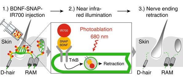 ligand_guided_photoablation_therapy