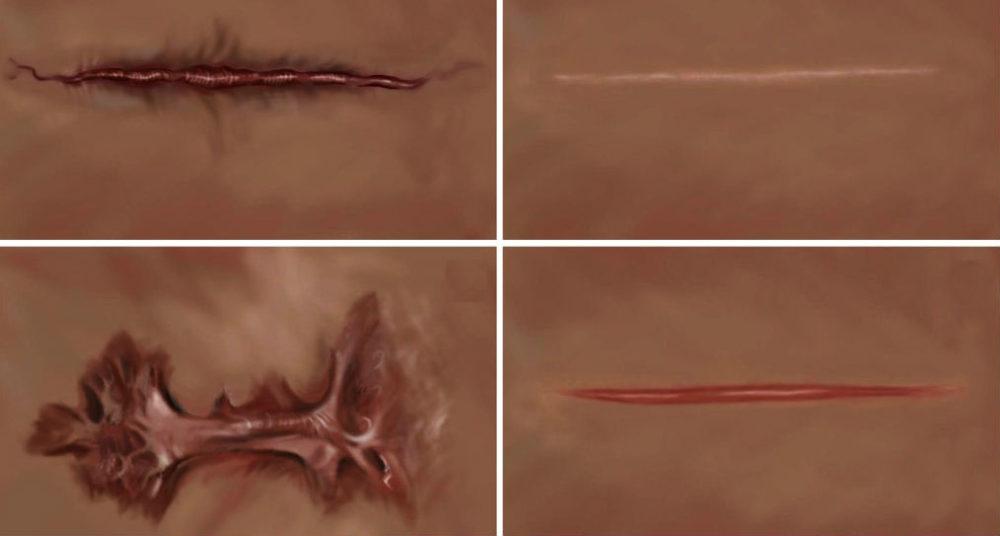 4_scars